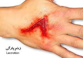 درمان زخم